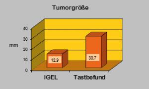 Histologische Tumorgröße